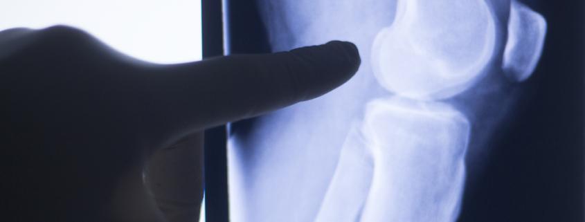rigenerazione della cartilagine immagine copertina lastra manzini
